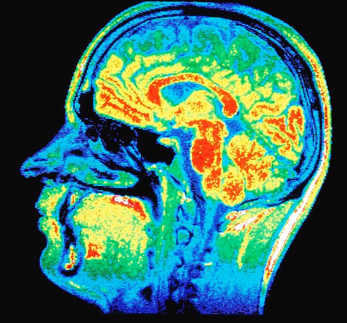 Dihexa Brain Scan